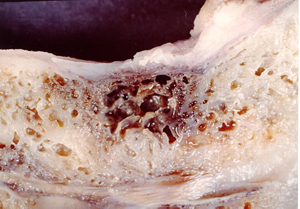 Cross section of the jawbone showing a hollow area with necrotic (dead) tissue
