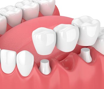 Dental Bridge for Front Teeth in Clearwater area