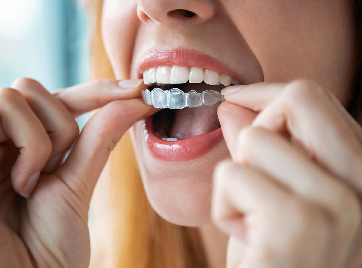 Teeth Straightening With Invisalign at Natural Dentistry in Clearwater Area
